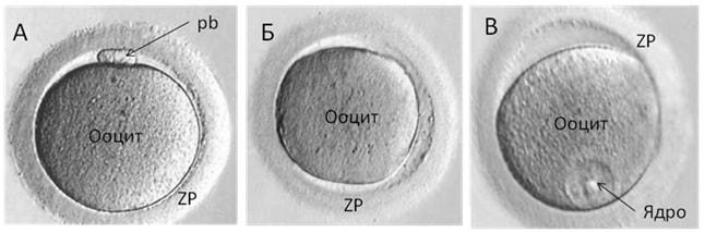 Ооцити, отримані при пункції яєчників після видаленнякумулюса(денудаціі)