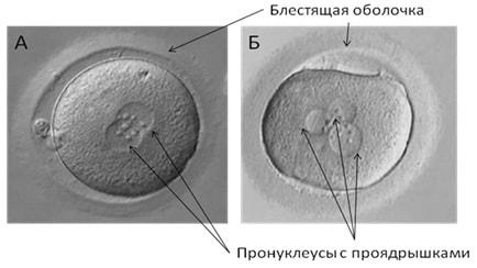 Як подружній парі самостійно оцінити якість ембріонів керуючись даними  ембріологічного протоколу?